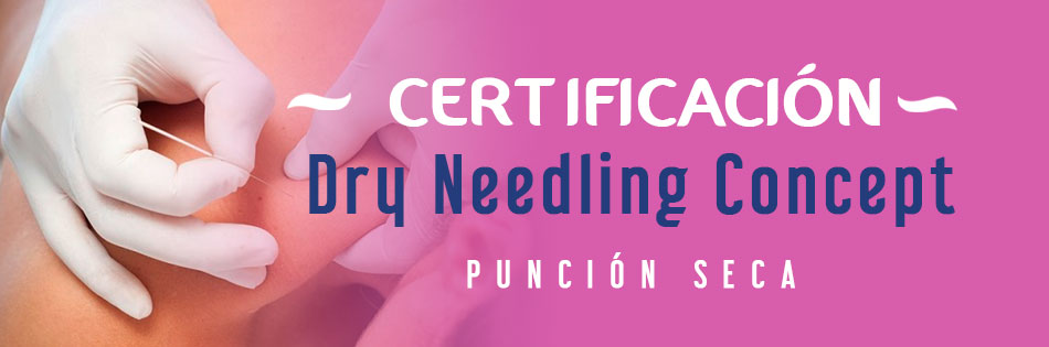 Dry Needling Concept Punción Seca - Zacatecas, Zac.