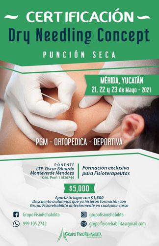 Certificación Dry Needling Concept Mayo 2021 Yucatán